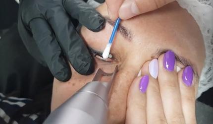 Laserowe usuwanie kresek na powiekach, usuwanie makijażu permanentnego, efekt!