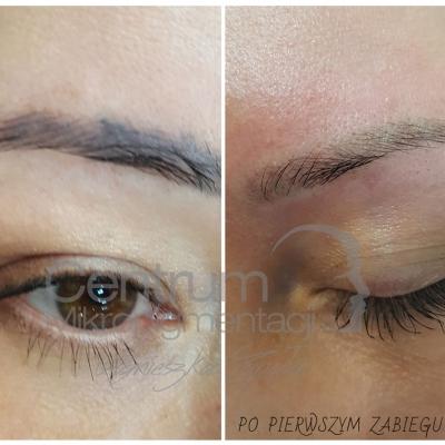 Laserowe usuwanie makijaż permanentny brwi. Efekty przed i po
