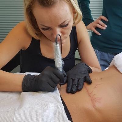 skin needling zabieg