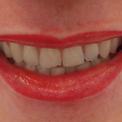 usta makijaż permanentny efekty zabiegu