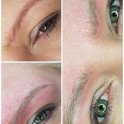 Laserowe usuwanie czerwonych brwi makijaż permanentny efekty prze i po