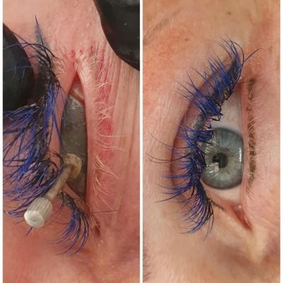 Laserowe usuwanie makijażu permanentnego kreska górna