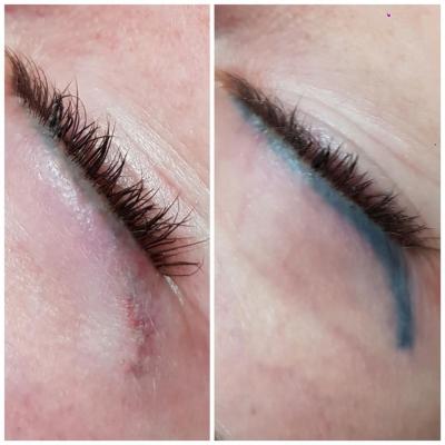 Laserowe usuwanie makijażu permanentnego kreski