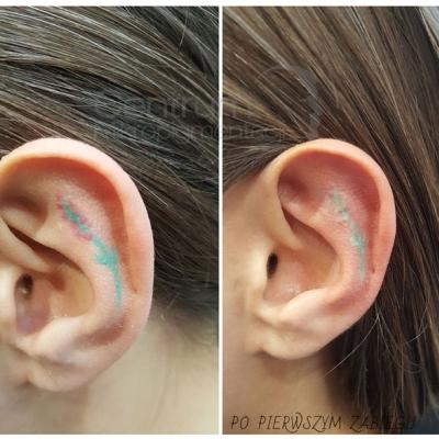 Laserowe usuwanie tatuażu. Efekty przed i po