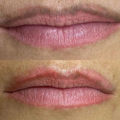 Laserowe usuwanie makijażu ust