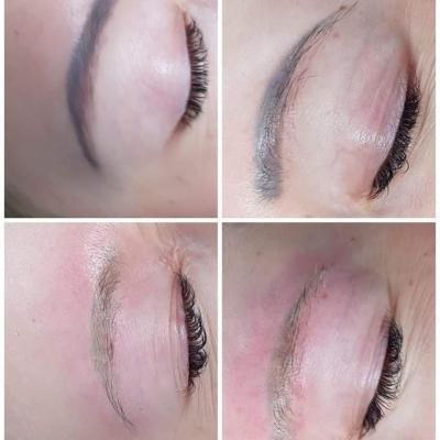 Laserowe usuwanie brwi makijaż permanentny. Efekt przed i po
