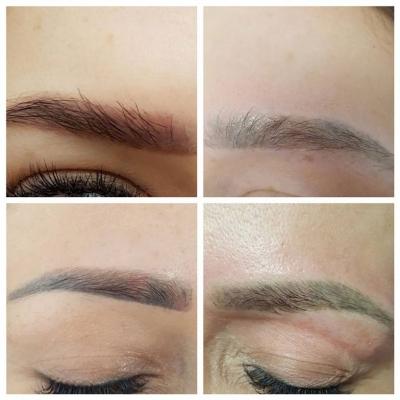 Laserowe usuwanie czerwonych brwi makijaż permanentny. Przed i po
