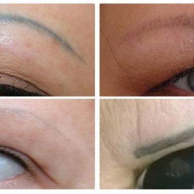 Laserowe usuwanie makijażu permanentnego brwi. Przed i po efektu