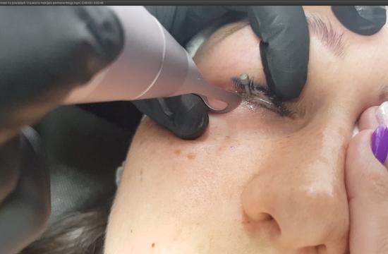 Laserowe usuwanie kresek na powiekach. Usuwanie makijażu permanentnego. Efekty